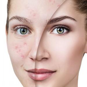 Tratamiento para acné...